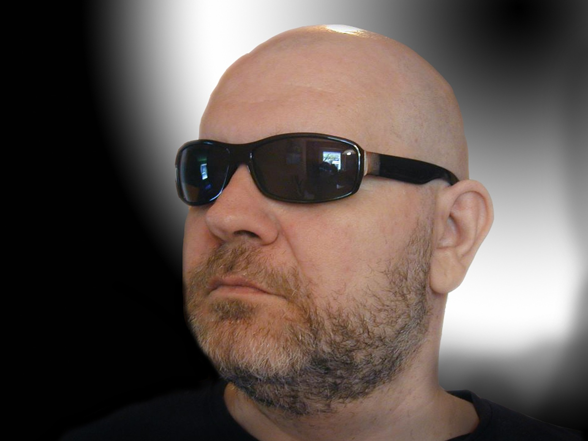 Haarimplantate - Der Weg zum vollen Haar auf men-styling.de